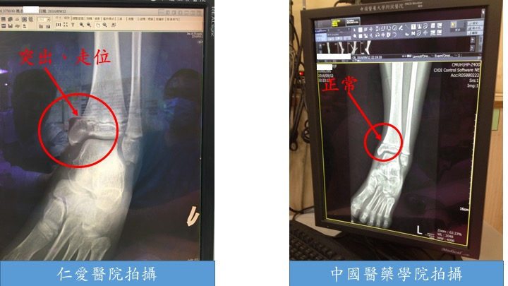 20160912小波妞車禍顯化